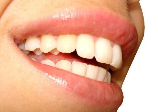 красивые зубы современные методы